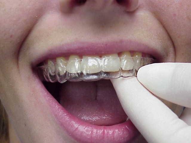 7 Things You Should Know About Invisalign